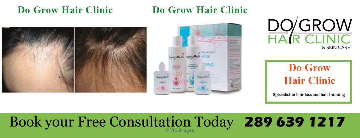 Proven Hair Loss Products ottawa