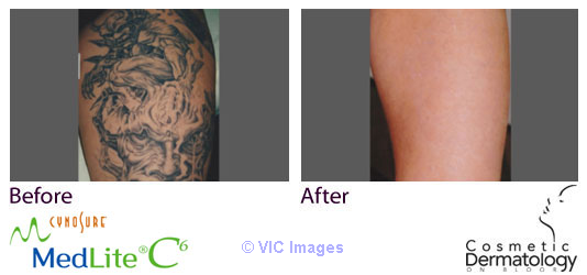 Local Laser Tattoo Removal Toronto- Dr. Sam Hanna For Best Results  Ottawa, Ontario, Canada Classifieds