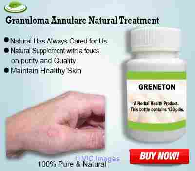 Natural Treatment for Granuloma Annulare ottawa